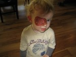 Steven wears a patch 2 hours a day to strengthen one eye. He may have surgery this summer.
